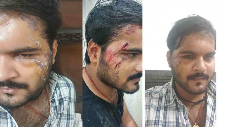 Arvind Akela Kallu (RACE) Movie की शूटिगं के दौरान हुआ Accident ,बुरी तरह घायल